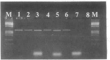 spri magnetic beads based pcr product purification